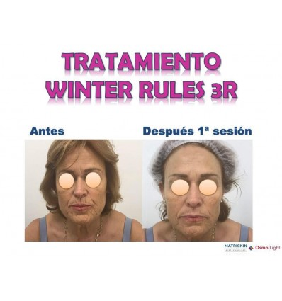 tratamiento winter rules 3R